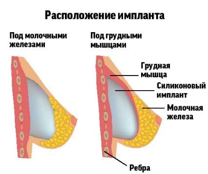 У ребенка окружность груди меньше чем окружность головы